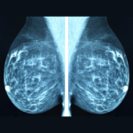 Interpreting the Mammography Report